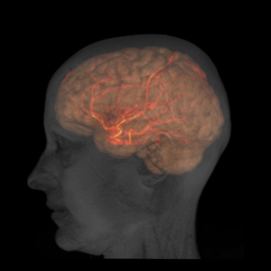 brain_scan